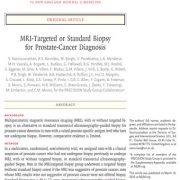 بیوپسی  MRI(ام آر ای) برای تشخیص سرطان پروستات