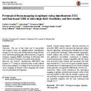 "<span itemprop=""name"">نقشه برداری قبل از جراحی مغز در زمان فلج مغزی با استفاده همزمان از EEG و MRI</span>"
